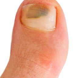 Truth about discolored toenails