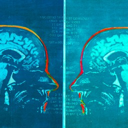 Artist with MS turns her brain scans into beautiful works of art