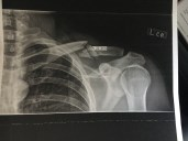 X-ray of Will's broken collarbone.