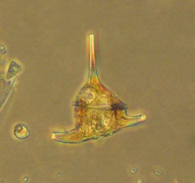 Believed to be Ceratium, a dinoflagellate. Photo courtesy of Merry Passage.