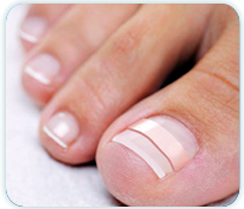 SCVNews.com | Local Firm Offers Non-Surgical Solution for Ingrown ...
