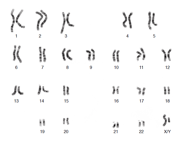 Human chromosomes (2/2)