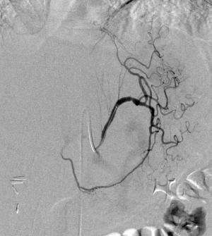 Embolization procedure aids in weight loss