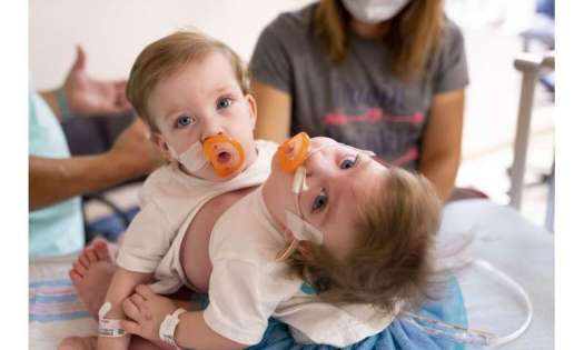 'Power of positive': Michigan conjoined twins separated