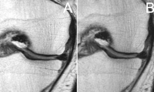 Racket sports may worsen knee arthritis