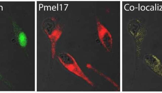 An amyloid link between Parkinson's disease and melanoma