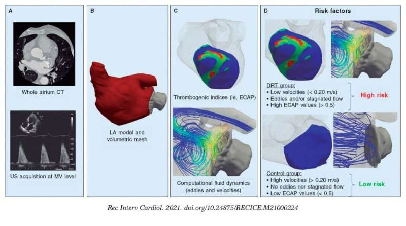 Blood flow simulations may improve the monitoring of atrial fibrillation
