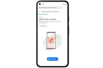 Google aims to use AI to help recognize common skin conditions | Tech Xplore MAY 19, 2021 / Consumer & Gadgets / Machine learning & AI / REPORT  by Sarah Katz , Tech Xplore  https://techxplore.com/news/2021-05-google-aims-ai-common-skin.html