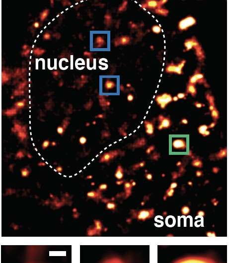 """How brain cells repair their DNA reveals """"hot spots"""" of aging and disease"""