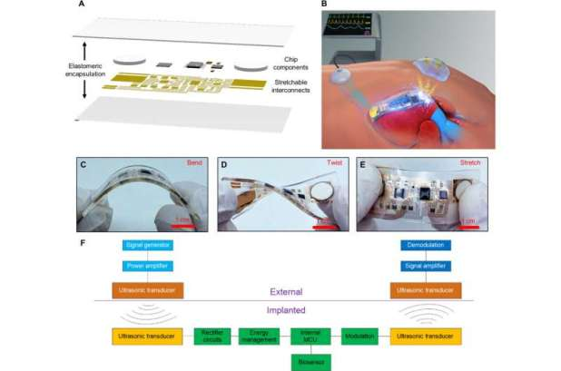 Simultaneous acoustic energy transfer and communication in neuroscience and cardiovascular medicine