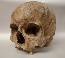 DNA study reveals previously unknown diversity of leprosy strains in Medieval Europe