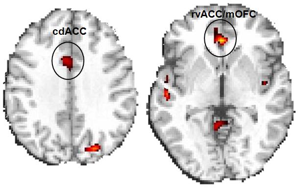 Ritalin improves brain function, task performance in