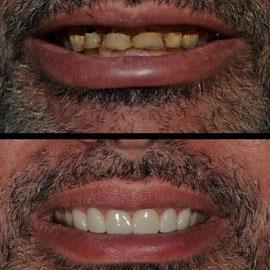 Veneers / Lumineers Bakersfield, CA Dentist