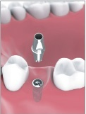 Single Tooth Implant Bakersfield, CA Dentist