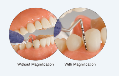 magnified dentistry Bakersfield, CA