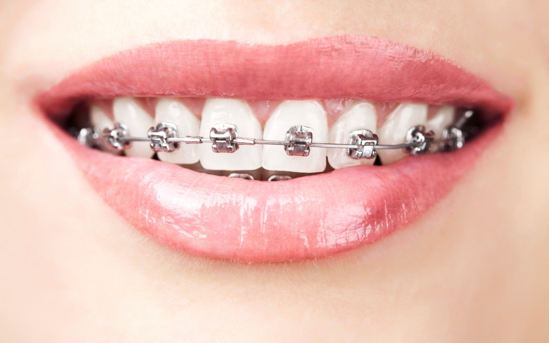 FAQs about Orthodontics