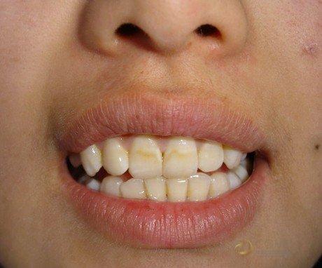 什麼是氟牙癥 (Dental fluorosis) ? – Searching Health