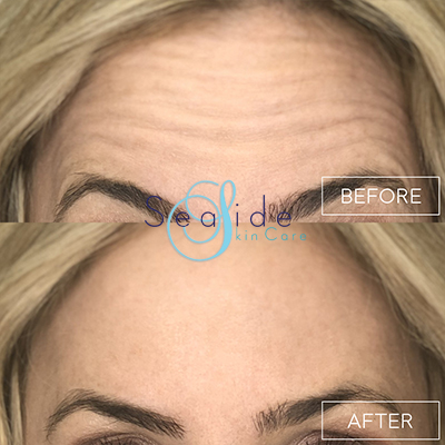 Botox Forehead Before & After