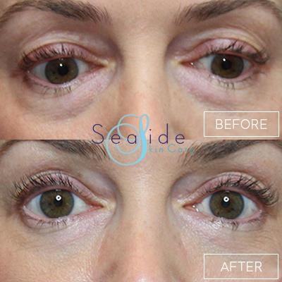 Undereye Filler Before & After