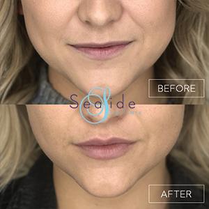 Lip Filler Before & After