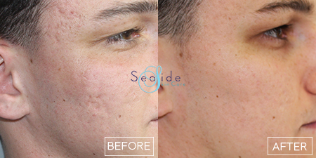 Pearl Fractional Before & After