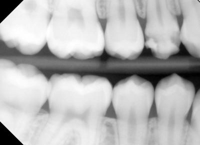 In this x-ray, tooth #5 shows the defective enamel.
