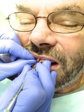We must record the midline. This is where the lab will place the two front teeth.