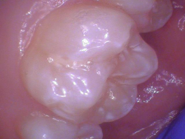 Upper 6 year molar - Examples of teeth that have had fluoride. Frosty white appearance.