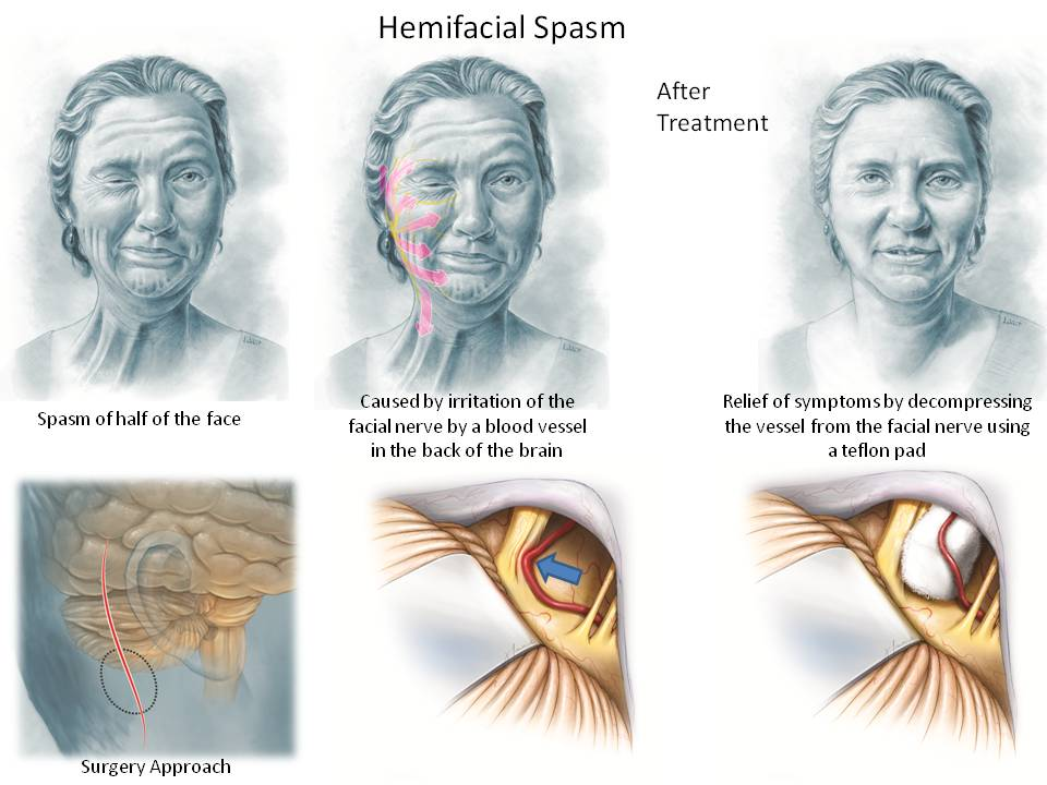 Hemifacial Spasm Effective Treatment ...