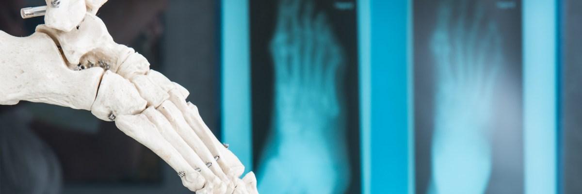 biomecanica-y-ortopodologia