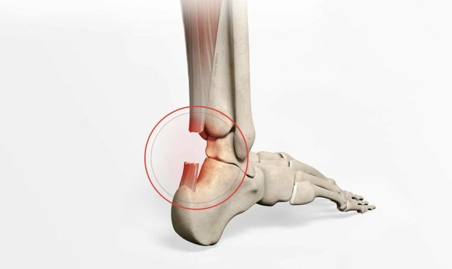 Rupture du tendon d'Achille : témoignage d'une convalescence réussie