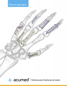 Hand-Fracture-System