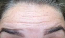 Botox - Raised Before