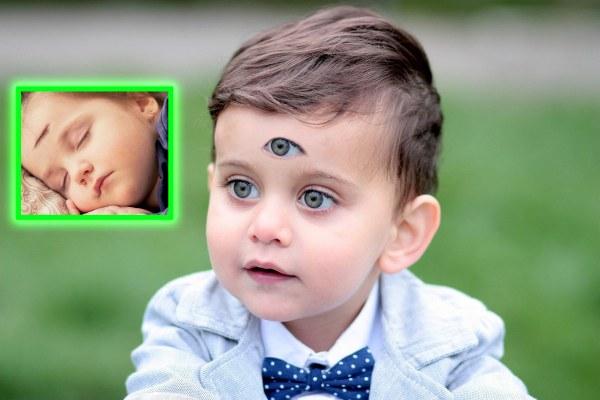 """""""Mon fils n'est pas un cyclope !"""" Son enfant est né avec 3 yeux, elle livre un témoignage bouleversant"""