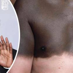 Le pari fou de Omar Sy : se blanchir la peau au laser pour jouer le prochain James Bond