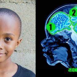 L'enfant le plus intelligent du monde possède trois cerveaux et un QI de 379