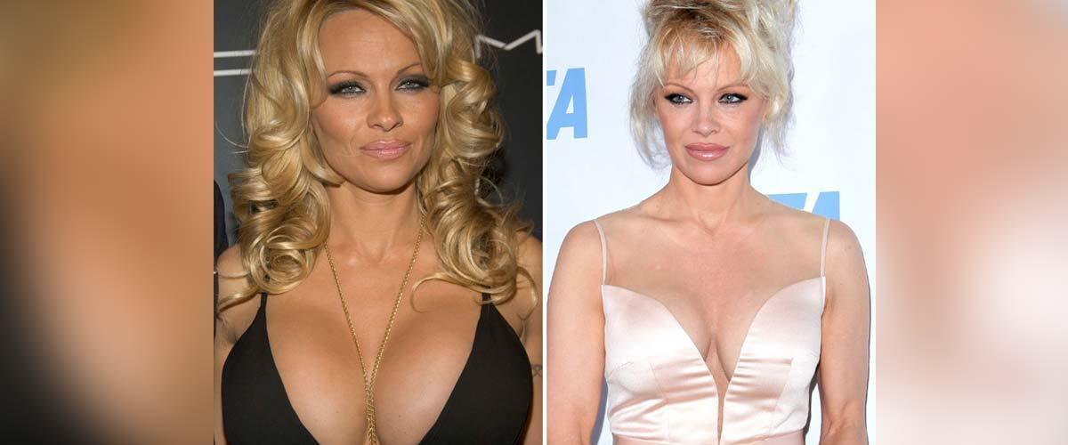 Pamela Anderson vend ses vieux implants au profit des enfants pauvres de Marseille