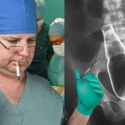 Belgique : un chirurgien qui opérait ivre à oublié sa bière dans le rectum du patient