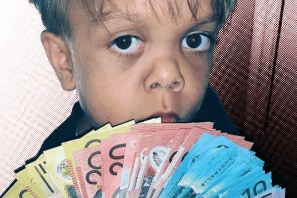 """""""Quel talent !"""" : Les Balkany proposent d'adopter le petit Quaden"""