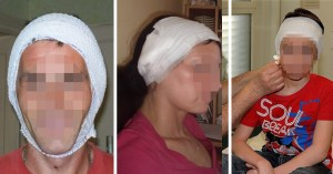 Déjà 934 Français ont perdu leurs oreilles à cause des masques trop serrés