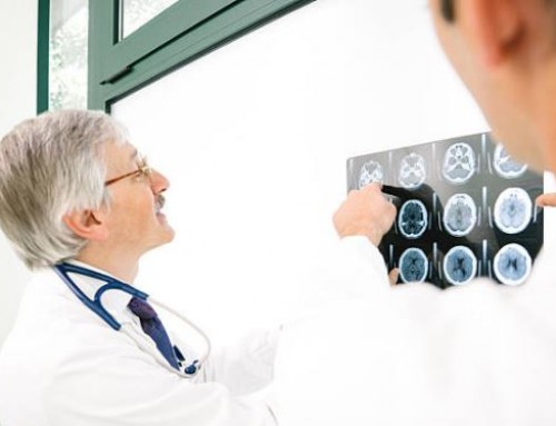 Stem Cell Stroke Therapy is Shown Safe for Patients
