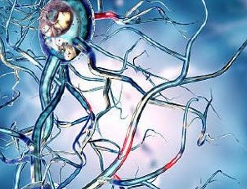 Stem Cell Trial to Target Huntington's Disease