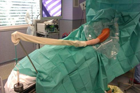 Shoulder Athroscopy  The Shoulder and Elbow Clinic