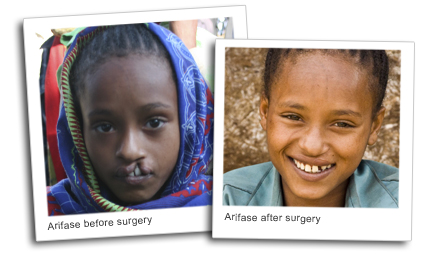 Arfiase, before and after surgery