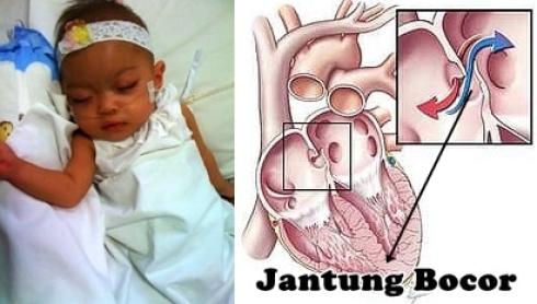 Penyebab Jantung Bocor Pada Anak