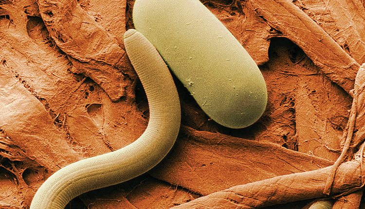 Low-temperature scanning electron micrograph of soybean cyst nematode and its egg. Magnified 1,000 times. Source: USDA ARS