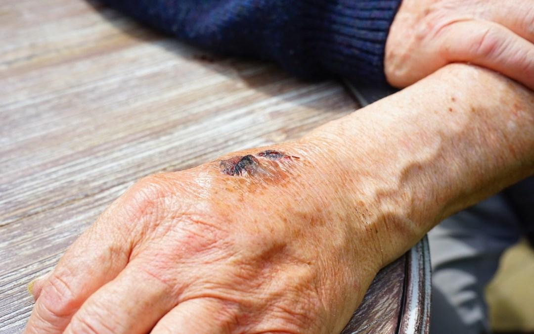Korrektur von Hautnarben