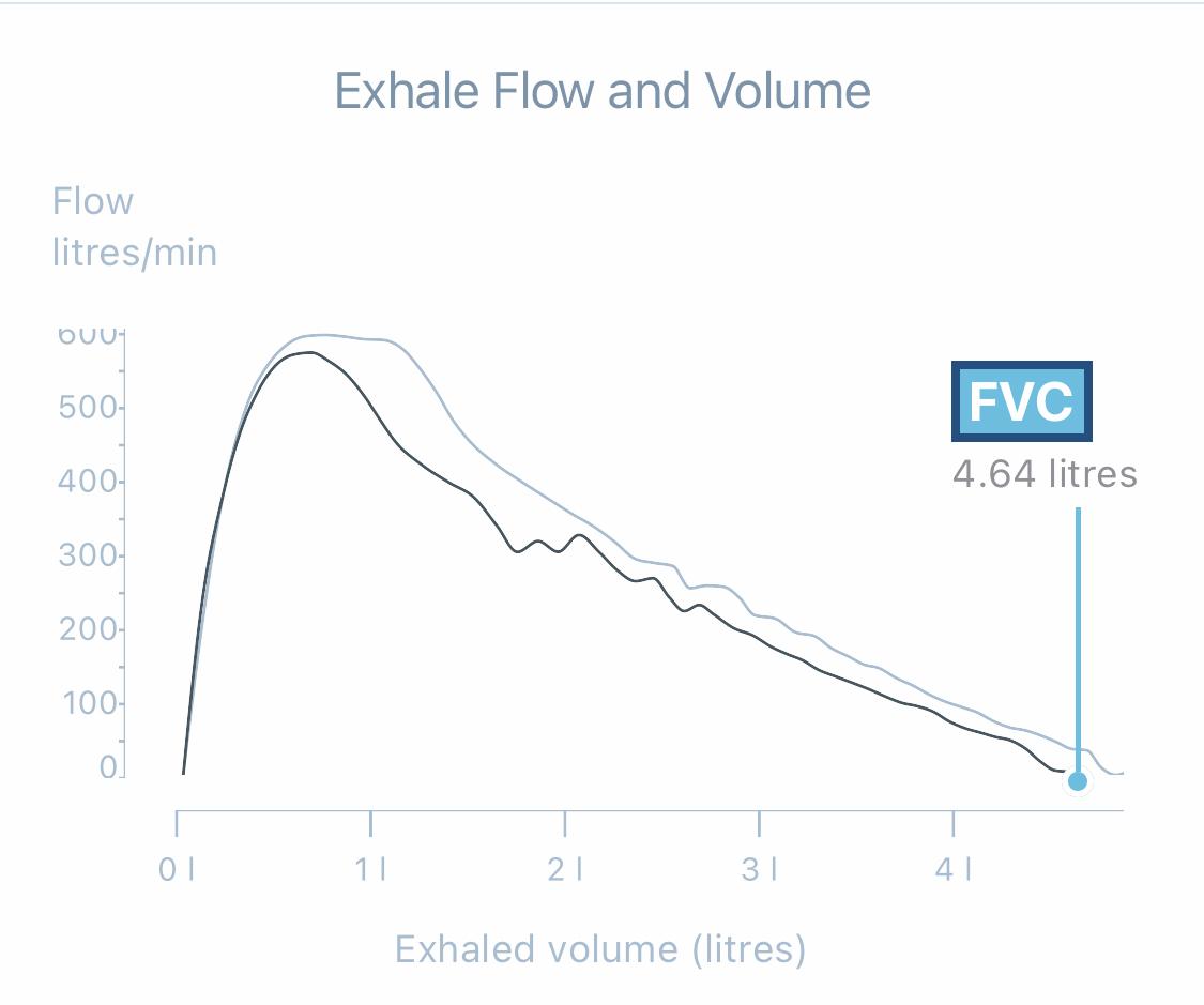 Review: KAMU Spirometer (Asthma)