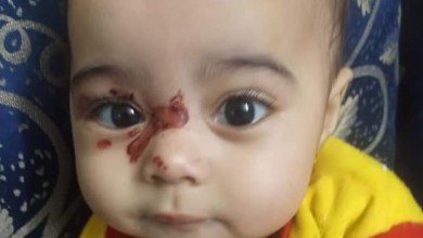 """Photo of الطفولة والأمومة"""" يتدخل لإنقاذ الطفلة """"ساجدة""""  بعد تعرضها للتغذيب على يد أُمها"""