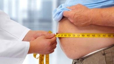 Photo of أخصائية التغذية والسنمة توضح عادات تؤدي إلى السمنة